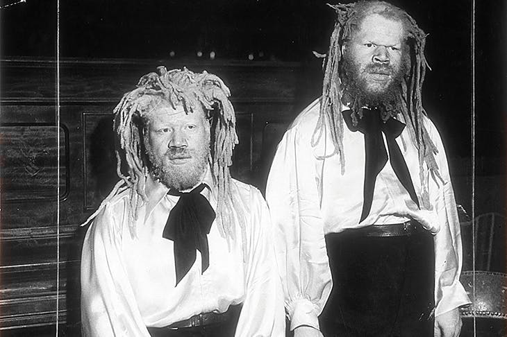 George (left) and Willie Muse were exhibited for decades as fairground freaks — billed as 'sheep-headed cannibals from Ecuador' or 'ambassadors from Mars'